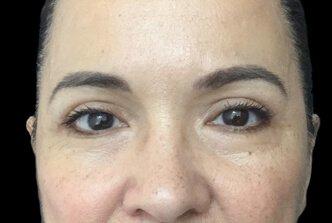 Blepharoplasty Before And After Dr Sharp 2