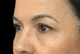 Blepharoplasty Before And After Dr Sharp 5
