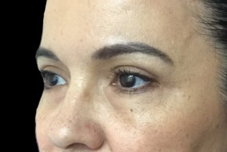 Blepharoplasty Before And After Dr Sharp 6