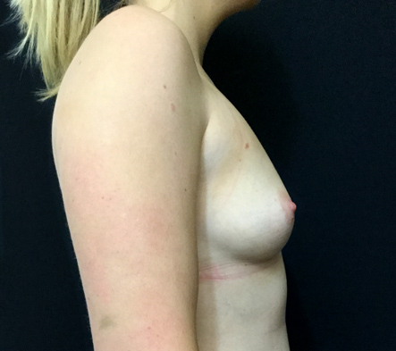 boob-job-Brisbane-before