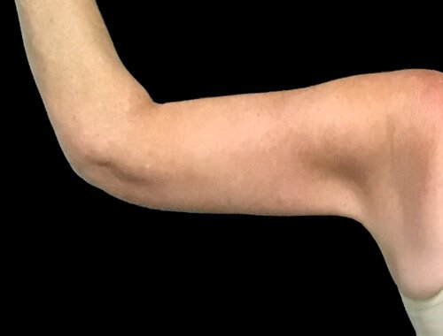 Brachioplasty Arm Lift Plastic Surgeon EP 2
