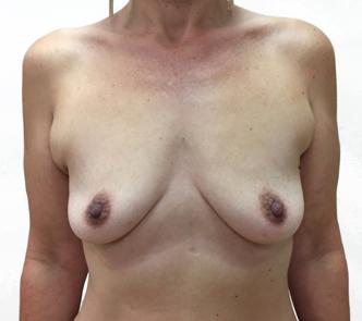 breast-augmentation-Brisbane-and-Ipswich-1a