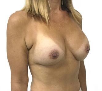 breast-augmentation-Brisbane-and-Ipswich-1h