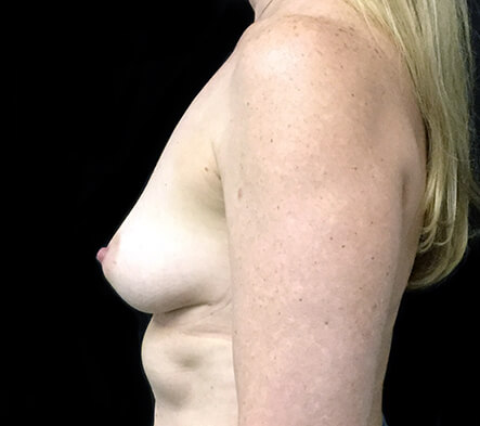 breast-augmentation-mature-aged-after-ZR-side-