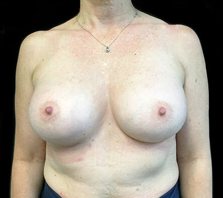 breast-augmentation-mature-aged-after-ZR
