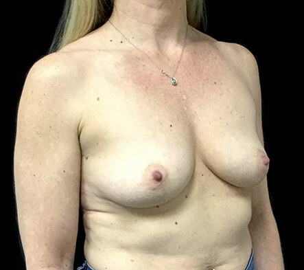 breast-augmentation-mature-aged-before-after-ZR-side