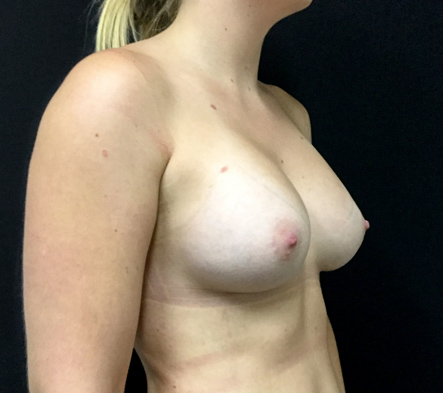 breast-augmentation-surgery-Brisbane-and-Ipswich-review