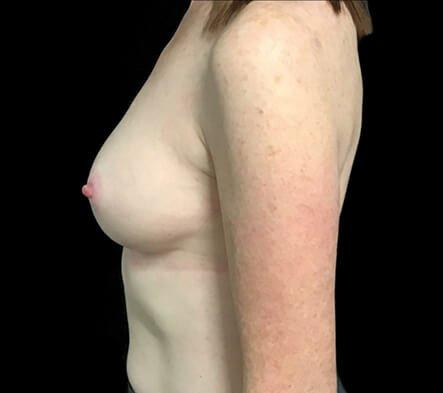 Breast Augmentation After 180cc Motiva Ergonomix 3b AB