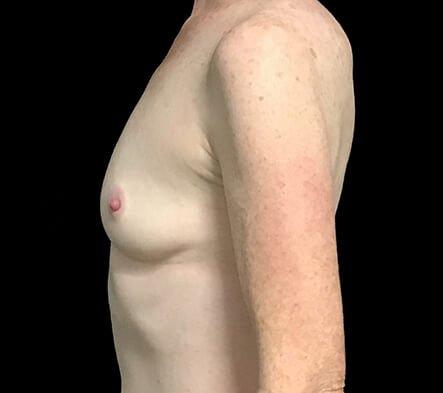 Breast Augmentation After 180cc Motiva Ergonomix 4 AB