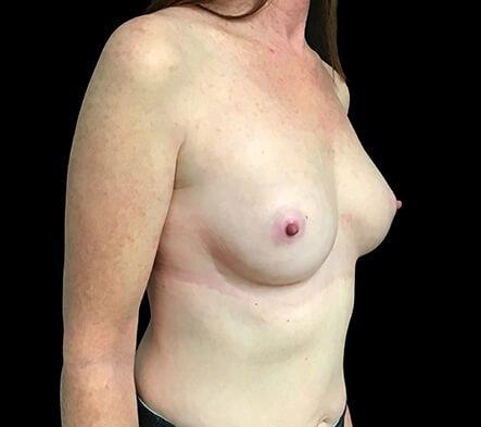 Breast Augmentation After 180cc Motiva Ergonomix 6 AB