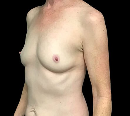 Breast Augmentation After 180cc Motiva Ergonomix AB 1