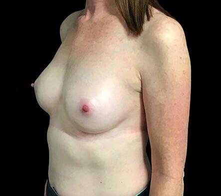 Breast Augmentation After 180cc Motiva Ergonomix AB 2