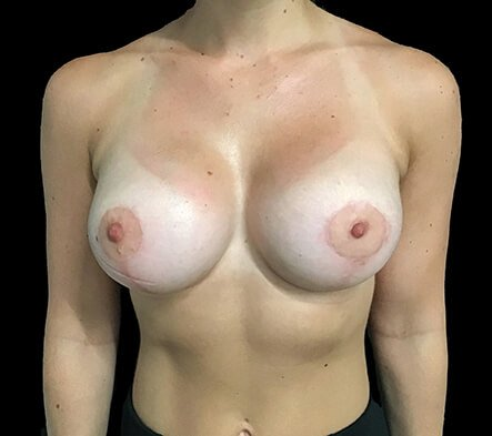 Breast Augmentation And Lift MM 1