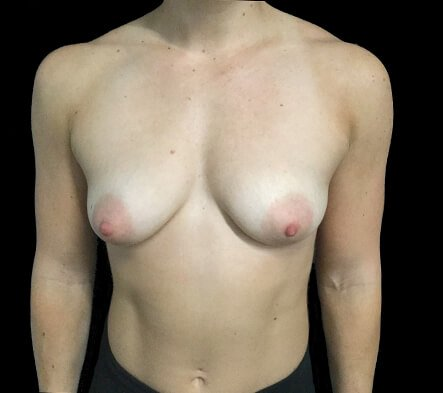 Breast Augmentation And Lift MM 2