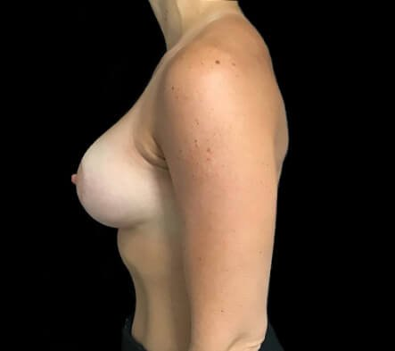 Breast Augmentation And Lift MM 5