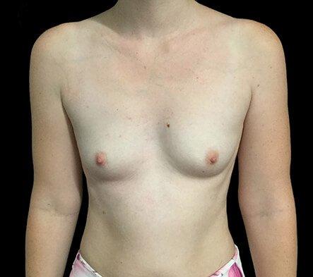 Breast Augmentation Brisbane Dr Sharp 375 Motiva Round Full Profile KP 1