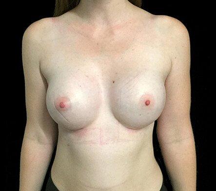 Breast Augmentation Brisbane Dr Sharp 375 Motiva Round Full Profile KP 2