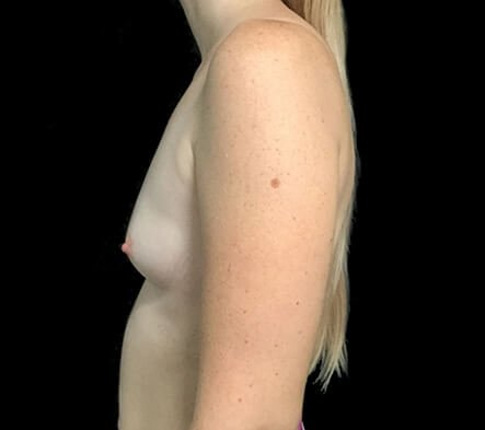 Breast Augmentation Brisbane Dr Sharp 375 Motiva Round Full Profile KP 3