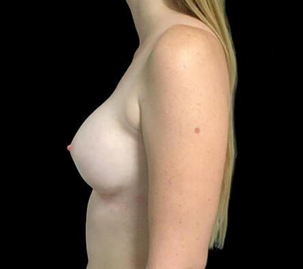 Breast Augmentation Brisbane Dr Sharp 375 Motiva Round Full Profile KP 4