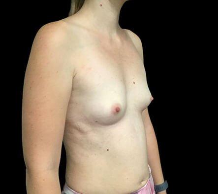 Breast Augmentation Brisbane Dr Sharp 375 Motiva Round Full Profile KP 5