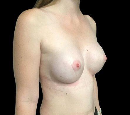 Breast Augmentation Brisbane Dr Sharp 375 Motiva Round Full Profile KP 6