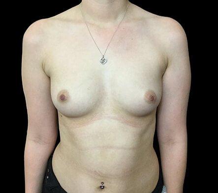 Breast Augmentation Brisbane Dr Sharp 375 Motiva Round Full Profile KS 1