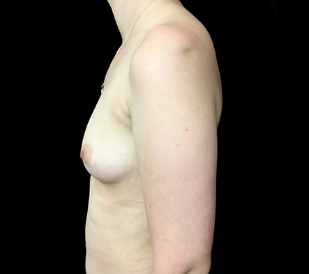 Breast Augmentation Brisbane Dr Sharp 375 Motiva Round Full Profile KS 2
