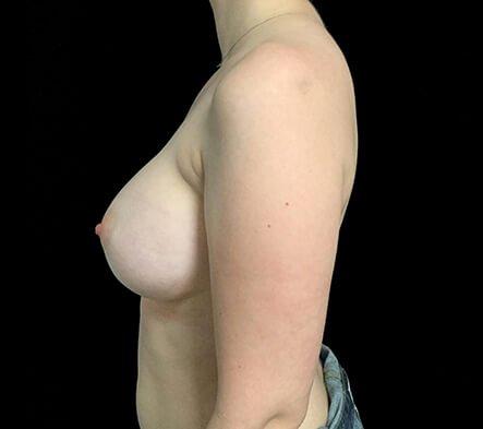 Breast Augmentation Brisbane Dr Sharp 375 Motiva Round Full Profile KS 2b