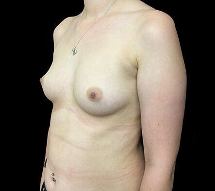 Breast Augmentation Brisbane Dr Sharp 375 Motiva Round Full Profile KS 3