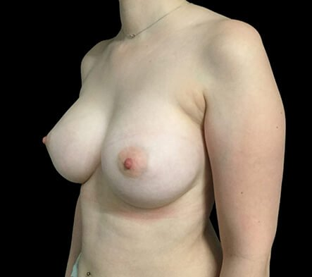 Breast Augmentation Brisbane Dr Sharp 375 Motiva Round Full Profile KS 4