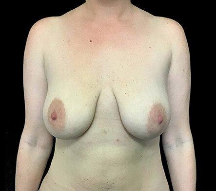 Breast Augmentation Mastopexy Lift Mummy Makeover Dr Sharp Brisbane ES 1