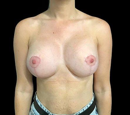 Breast Augmentation Mastopexy Lift Mummy Makeover Dr Sharp Brisbane ES 2