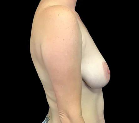 Breast Augmentation Mastopexy Lift Mummy Makeover Dr Sharp Brisbane ES 3