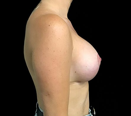 Breast Augmentation Mastopexy Lift Mummy Makeover Dr Sharp Brisbane ES 4