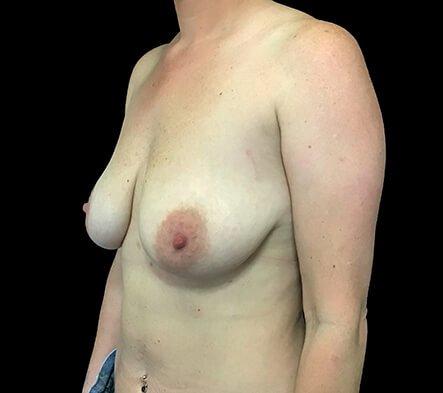 Breast Augmentation Mastopexy Lift Mummy Makeover Dr Sharp Brisbane ES 5