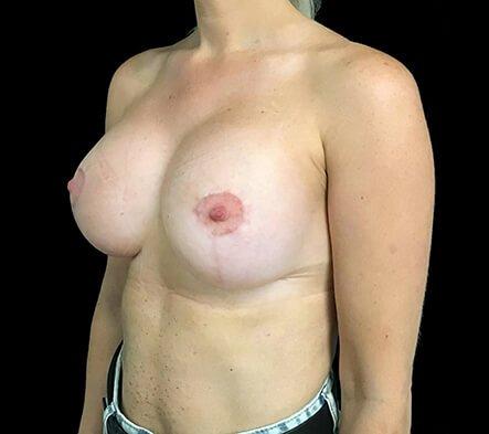 Breast Augmentation Mastopexy Lift Mummy Makeover Dr Sharp Brisbane ES 6
