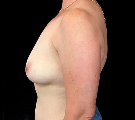 Breast Augmentation Surgery BT 1before