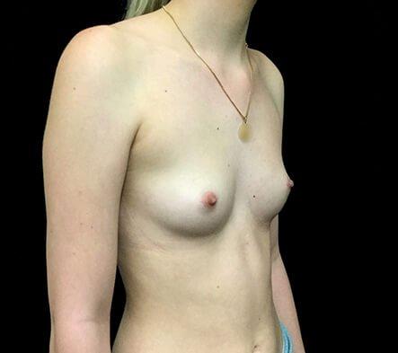Breast Augmentation Which Surgeon Brisbane Diag BEFORE AW