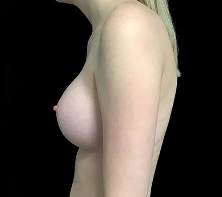Breast Augmentation Which Surgeon Brisbane Side AFTER AW