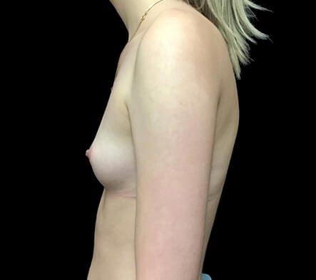 Breast Augmentation Which Surgeon Brisbane Side BEFORE AW