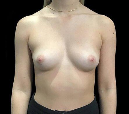 Breast Implants 330 Cc Anatomical Mod Plus Profile KL 1