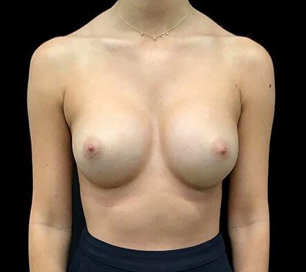 Breast Implants 330 Cc Anatomical Mod Plus Profile KL 2