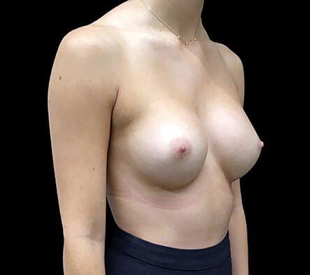 Breast Implants 330 Cc Anatomical Mod Plus Profile KL 4