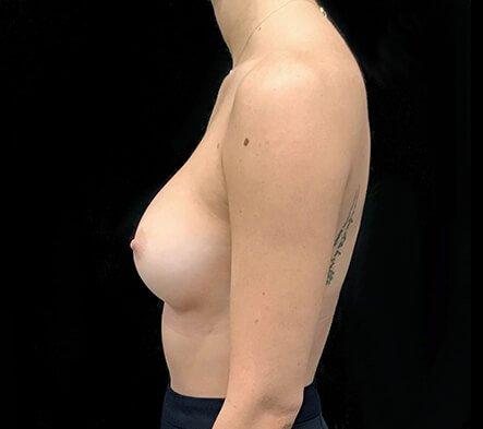 Breast Implants 330 Cc Anatomical Mod Plus Profile KL 6