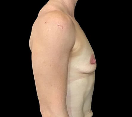 Breast Implants Brisbane Dr Sharp 375 Anatomical Mod Plus KI 1