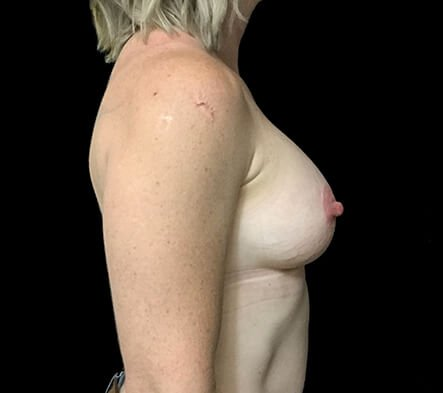 Breast Implants Brisbane Dr Sharp 375 Anatomical Mod Plus KI 2