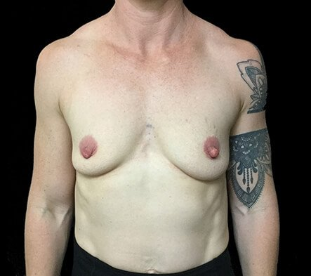 Breast Implants Brisbane Dr Sharp 375 Anatomical Mod Plus KI 3