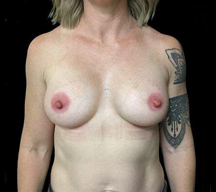 Breast Implants Brisbane Dr Sharp 375 Anatomical Mod Plus KI 4
