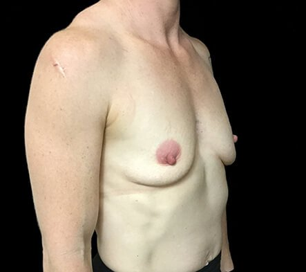 Breast Implants Brisbane Dr Sharp 375 Anatomical Mod Plus KI 5