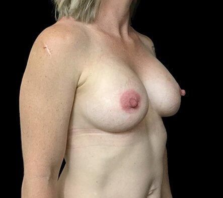 Breast Implants Brisbane Dr Sharp 375 Anatomical Mod Plus KI 6